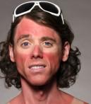 sunburnface